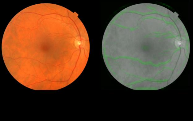 retina-google